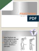 Fractura x