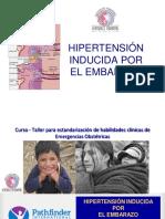 5 HIPERTENSION gestacional