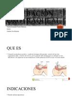 intubacion orotraqueal