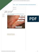 Ciclo Evolutivo de Úlcera Péptica & Cáncer Gástrico Temprano_ Revisión Del Intento