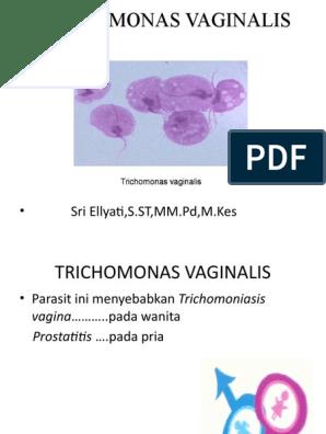 a párom megtalálta Trichomonas t)