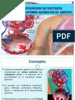 sndromedeldistrsrespiratorioagudo-150327110516-conversion-gate01