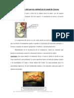 Compresion Nervio Cubital en GUYON