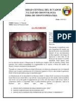 Indices de Fluorosis Dental
