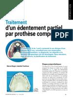 traitement d'un édentement partiel par prothèse composite