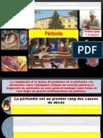 5 Péritonite Razoumovskaya 2021 (1)