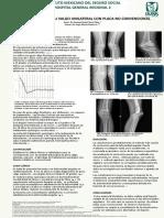 Tratamiento de Genu Valgo Unilateral Para Imprimir