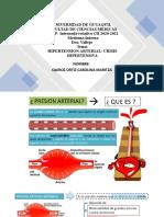 Hipertension Arterial- c. Quiroz