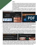 4. Alterações Dentárias Adquiridas