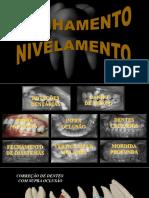 REUMO NIVELAMENTO II [Salvo Automaticamente]