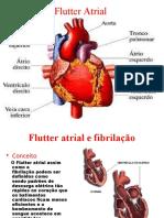 Flutter Atrial