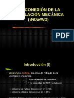 Desconexion_de_la_ventilacion_mecanica