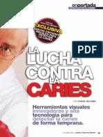 ICDAS CARIES pediatria