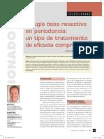 Cirugía ósea resectiva en periodoncia un tipo de tratamiento de eficacia comprobada