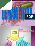Presentation1-tifoid