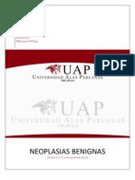 Informe 6 - Neoplasias Benignas