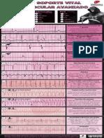 Ritmos de Soporte Vital Cardiovascular Avanzado