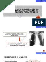 Cuidados de Enfermeria en Barotraumas Pulmonares