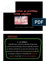 equilibration-occlusale