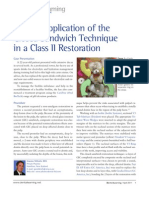 Clinical Application of the Closed Sandwich Technique in a Class II Restoration