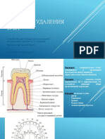 Удаление зуба