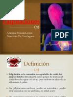 Palpitaciones (Fisiopatologia)