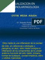 2. otitis media aguda