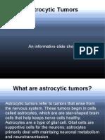 Astrocytic Tumors
