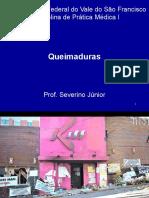 QUEIMADURAS -  seminario
