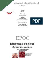 Exposicion de EPOC.