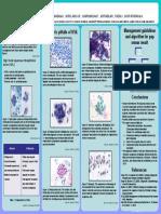 Pitfalls in Diagnosis of Hsil