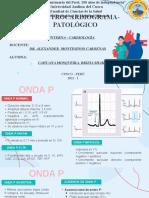 EKG PATOLÓGICO
