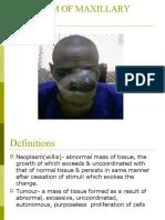 Max Sinus tumours