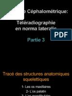 Céphalo Maxl Et Mdb