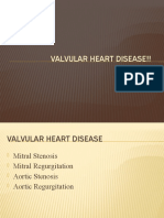 Valvular Heart Disease!!
