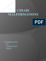 Chiari Malformations Report
