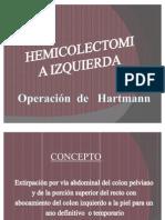 HEMICOLECTOMIA IZQUIERDA