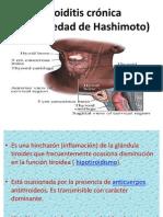 Tiroiditis crónica (Enfermedad de Hashimoto) jack