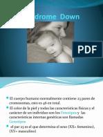 Sindrome Down Presentacion