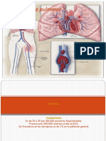 Tromboembolia Pulmonar Tvp Rfm Medicina Interna 2