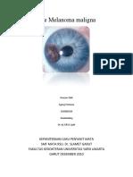 Eye Melanoma Maligna