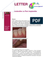 Periodontite vs Peri Implantite
