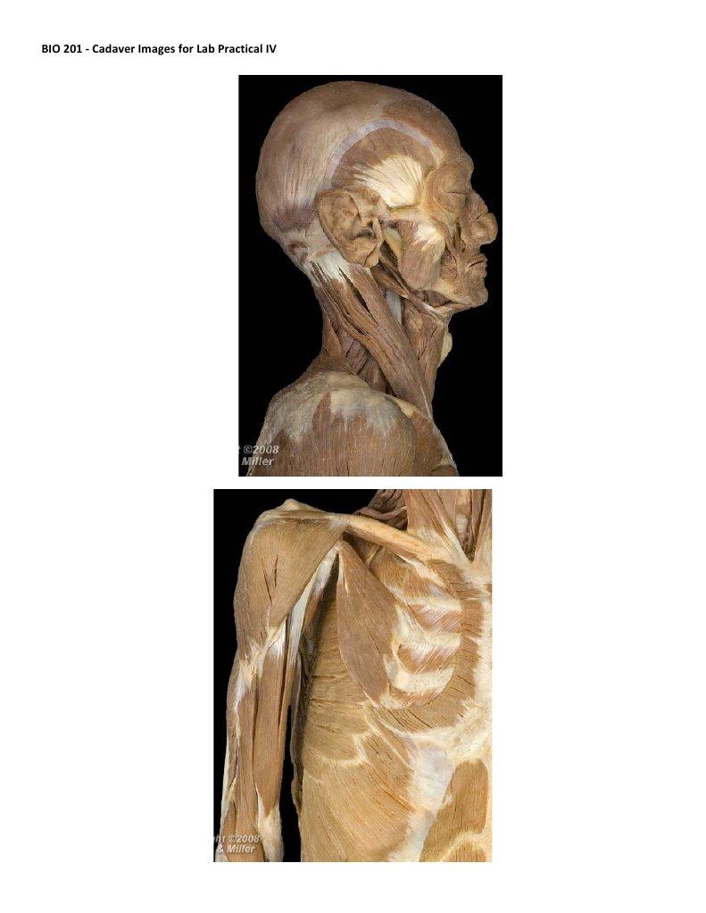 Cadaver Images for Exam IV
