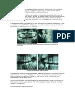 La Odontología pediátrica es una especialidad muy unida con la ortodoncia