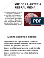 Sindrome de La Arteria Cerebral Media