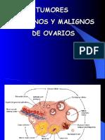 Tumores Benignos y Malignos de Ovario 1228447832478194 8