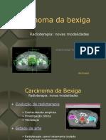 Radioterapia no cancro da bexiga