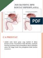 Diagnosis Banding BPH Ppt