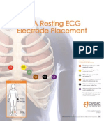 Ecg Placements