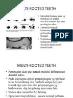 Multi Rooted Teeth (35 38)